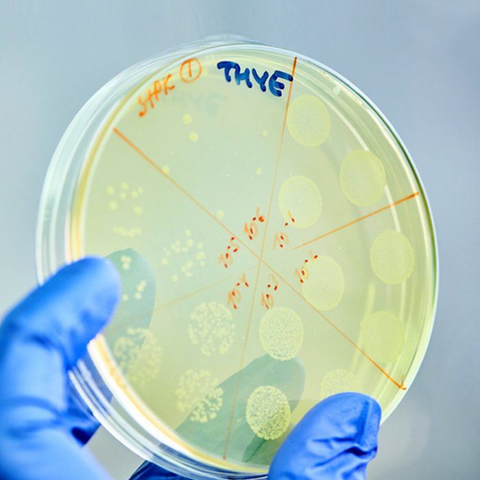 Scientist looking at Petri dish in a laboratory.